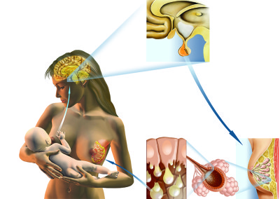 "SUCTION - Digital 2007 – ""Medical Enciclopedia from A to Z"", Deagostini-La Repubblica"